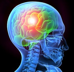 Mobile Alabama Traumatic Brain Injury Attorney