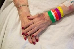 elderly woman's bruised hands folded over a blanket on her lap